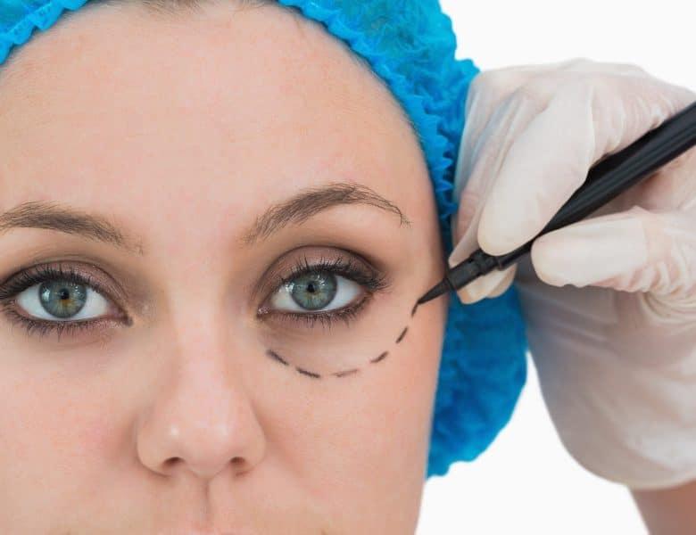Lazerle Göz Ameliyatı Hakkında