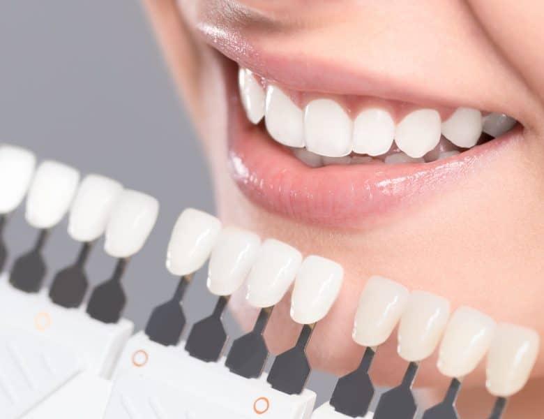 Diş Fırçası Nasıl Seçilir?