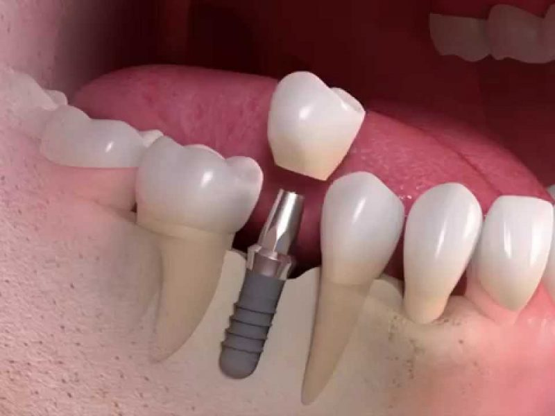 Eryaman Diş İmplant Hizmetleri