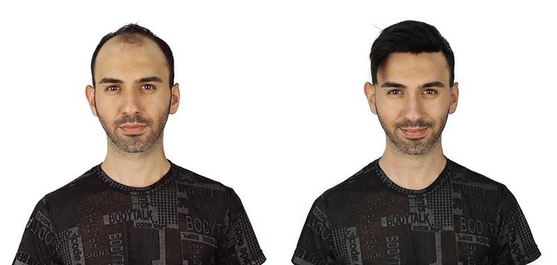 İstanbul'da Protez Saçın Tek Adresi Oscar Hair Protez Saç Uygulama Merkezi